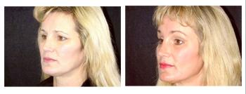 female patient before and after facelift procedure